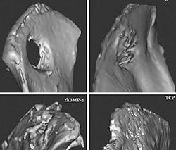 Bone formation around an implant