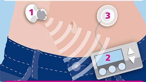 Artificial pancreas: 1. Glucose levels monitored continuously 2. Required insulin dose calculated 3. Insulin does delivered automatically  Diabetes UK