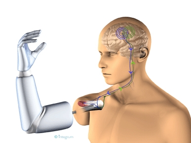 When amputee patients have received their new prosthesis, it will be controlled with their own brain signals. The signals are transferred via the nerves through the arm stump and captured by electrodes. These will then transmit the signals through a titan
