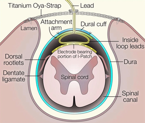 Cross-sectional schematic diagram of the spinal canal with the HSCMS device in place on the pial surface. The silicone membrane containing the electrodes conforms to the dorsal arc of the spinal cord and is held in place by the restoring force exerted by