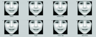 This image shows an average face taking on the average facial features of eight rare genetic disorders that have been built from a growing bank of photographs of people diagnosed with different syndromes. Oxford University scientists have developed a comp