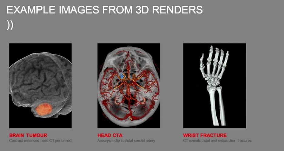 /r/h/u/Toshiba_Medical_Visualisation_Systems_scans.jpg