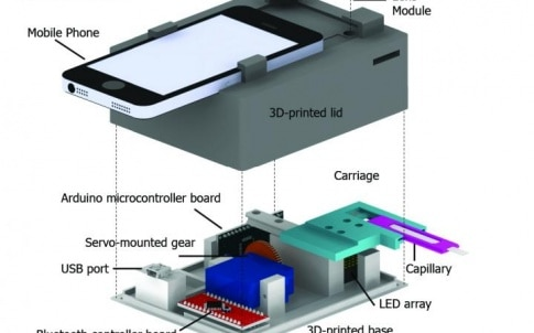 This is a schematic of the CellScope Loa device, a mobile phone-based video microscope. The device includes a 3-D-printed case housing simple optics, circuitry and controllers to help process the sample of blood. CellScope Loa can quantify levels of the L