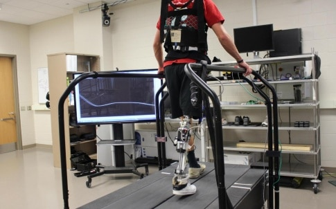 US researchers have developed software that allows powered prosthetics to tune themselves automatically