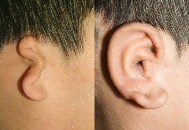 Children with under-formed or missing ears can undergo surgeries to fashion a new ear from rib cartilage, as shown in the above photo. But aspiring surgeons lack lifelike practice models.