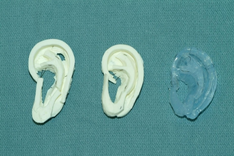 In the study, experienced surgeons preferred carving the UW's models (in white) over a more expensive material made of dental impression material (in blue).