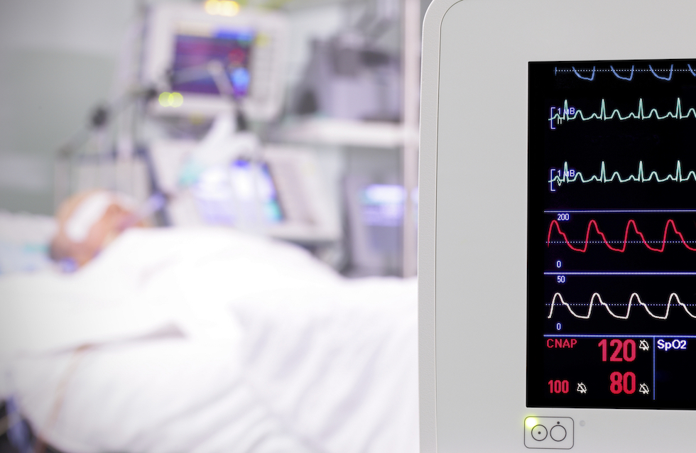 monitor in the room. intensive care unit. photo.