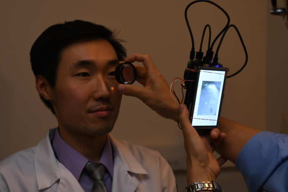 Dr Bailey Shen has his retina photographed using a camera based in the Raspberry Pi 2 computer