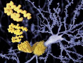 Targeting Alzheimer's disease