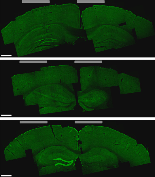 Brain slice shows hippocampus cells activated by the new stimulation technique (bottom image, lighter green areas on the left)