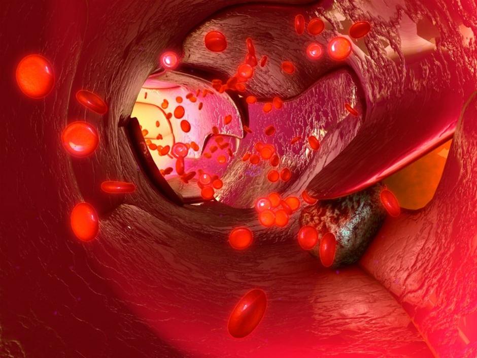 Spasers destroy metastasized cancer cells