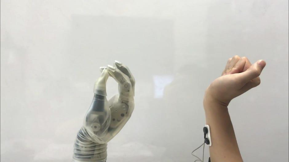prosthetic hands