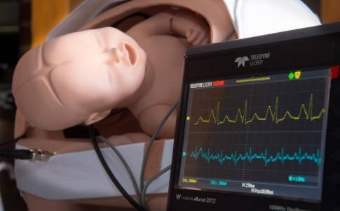 foetal heartbeat