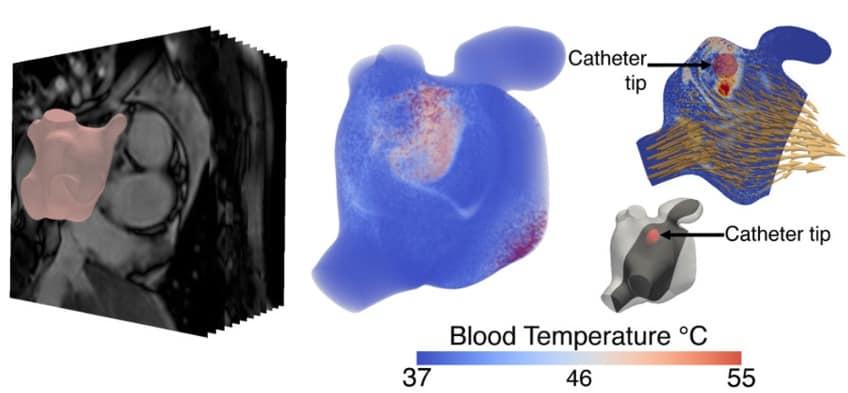 Personalised heart simulations